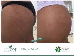 método striort para estrias em brasilia df bio renew clínica estética